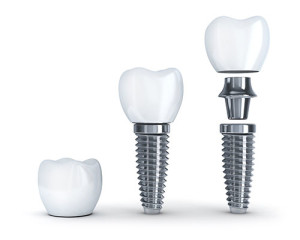 dental-implants-training
